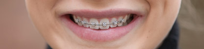 Rhodium-Brackets